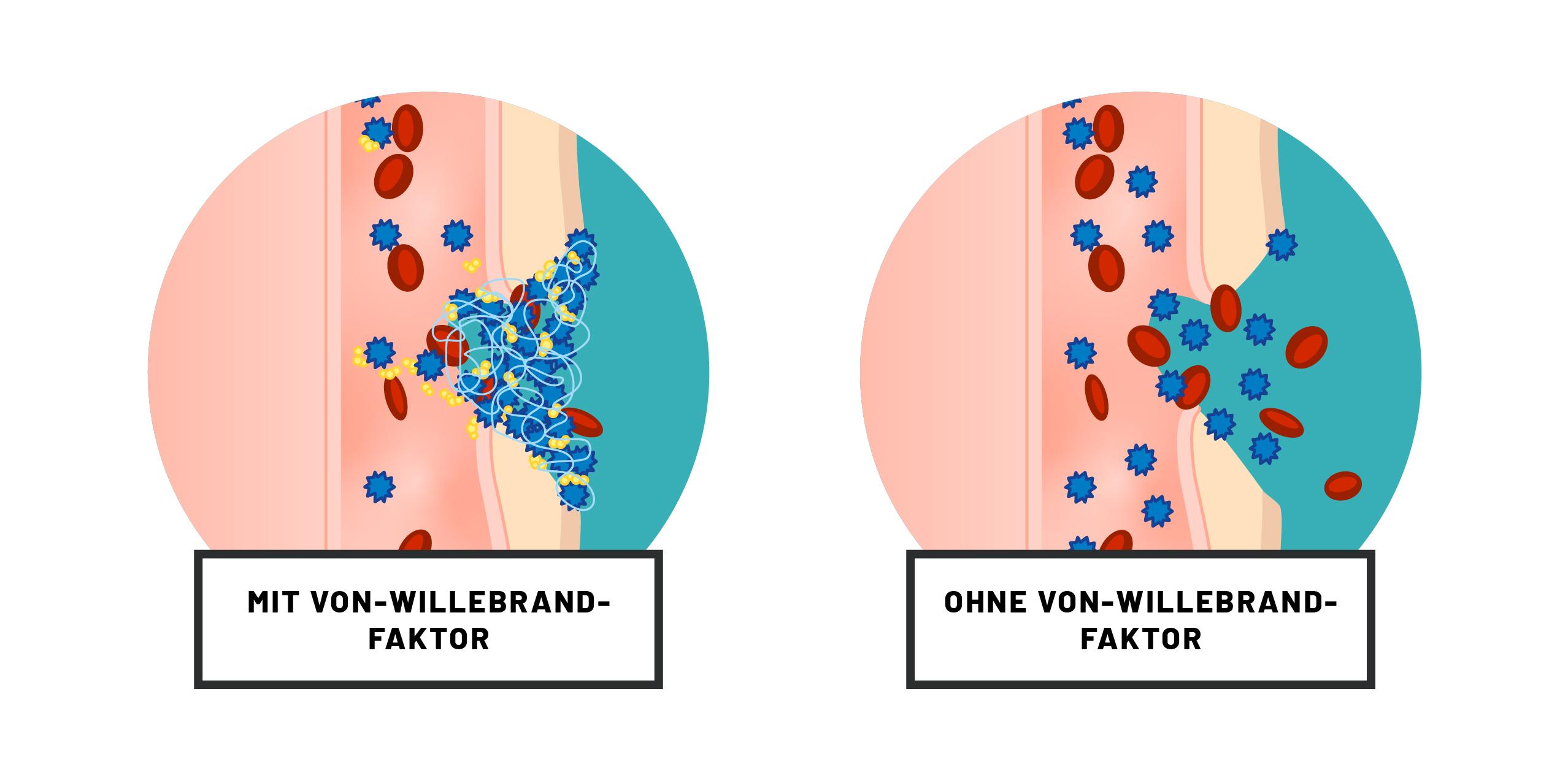 Abbildungen Wundverschluss mit und ohne von-Willebrand-Faktor